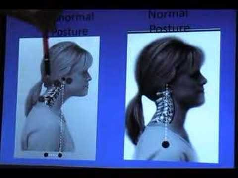 Fibromyalgia one solution    Very interesting.  I have had problems with my neck for 30+ yrs. as well as problems with thoracic and lumbar spine.  something for me to consider.
