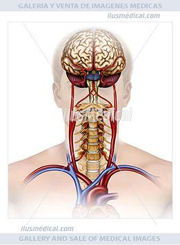 Vascularización arterial cerebral. La vascularización arterial de la cabeza y del cuello surge ....