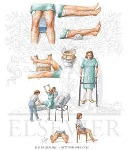 79 best avd treino images on pinterest geriatric occupational posterior total hip replacement exercises bing images fandeluxe Choice Image