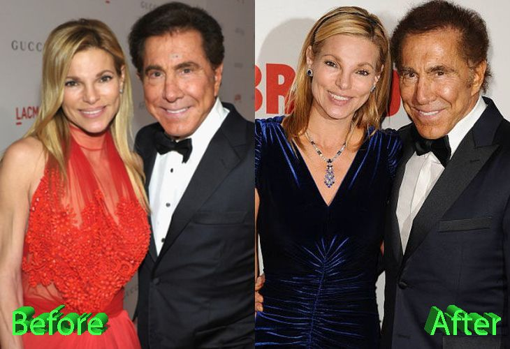 Andrea and Steve Wynn Before and After Plastic Surgery