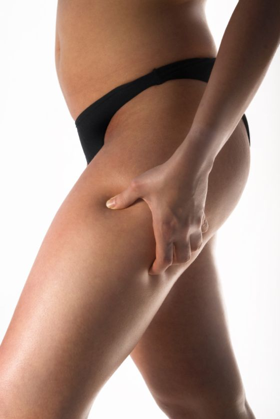 10 Things No One Ever Tells You About: Cellulite