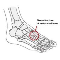 Stress Fracture: Symptoms, causes, prevention, and treatment | Runner's World
