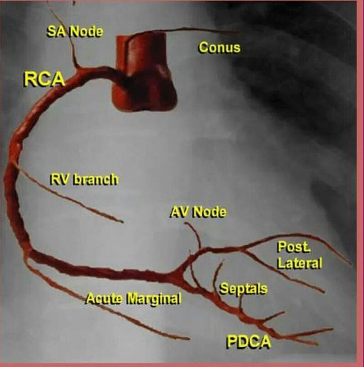 Simple figure for coronary arteries