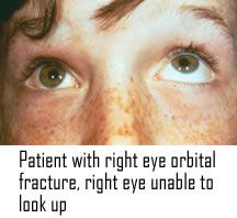 ORBITAL FRACTURE Etiol: blunt impact to the orbit SSx: painful, restricted vertical eye movement (can't look up), double vision, edema, proptosis, subcutaneous emphysema, posteriorly displaced globe Tx: refer, nasal decongestants, abx, cold compresses/ice packs, avoid sneezing, surgical repair
