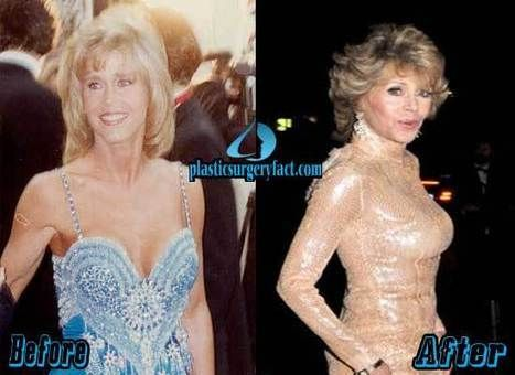 Jane Fonda Plastic Surgery Before and After PICTURES