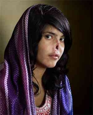 Photograph of Bibi Aisha (below), an Afghan woman disfigured as punishment for fleeing her husband's house,