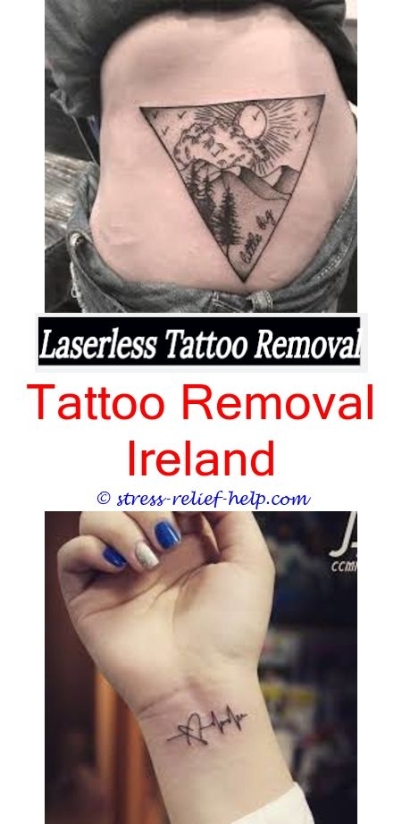 Tattoo Removal Machine Does Tattoo Removal Hurt Worse Than Getting A