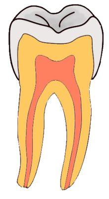 Pourquoi aller chez le dentiste? Raison #1 : Détecter les caries dentaires - http://genevieverompre.com/pourquoi-aller-chez-le-dentiste-raison-1-detecter-les-caries-dentaires/