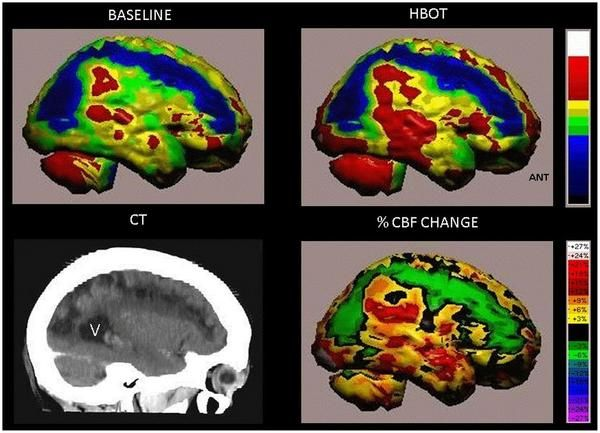 """Oxygen chamber can boost brain repair years after stroke or trauma.""  This clinical trial of hyperbaric oxygen therapy for stroke concludes that ""HBOT treatment can lead to significant improvement in brain function in post stroke patients even at chronically late stages, helping neurons strengthen and build new connections in damaged regions.""  http://www.healingdives.com"