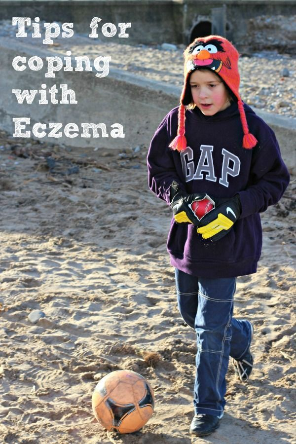 Tips for coping with Eczema as a family.  Both my boys have eczema to varying degrees from Mum in the Mad House