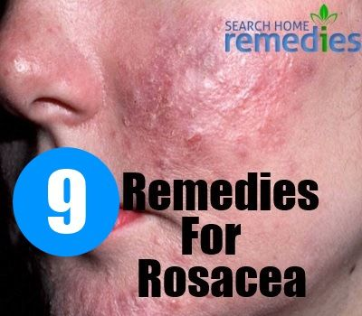 Treatment information facial rosacea