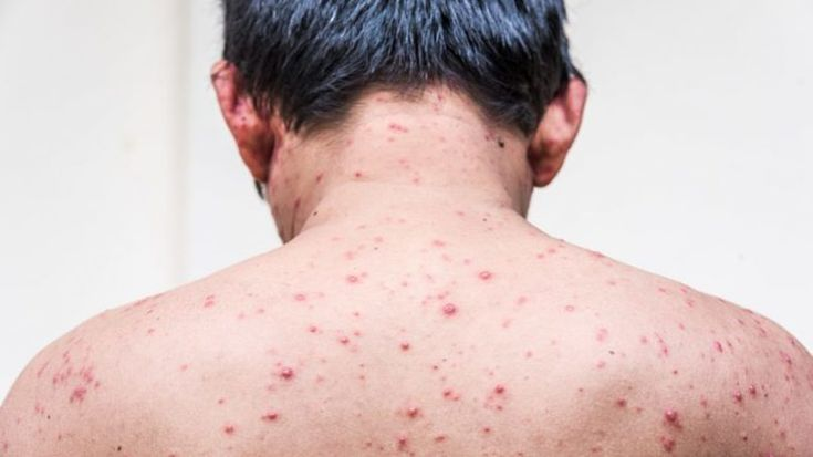 Back Acne Treatment - Zero in on Some of the Back Acne Home Remedies >>> Want to know more, click on the image. #facial