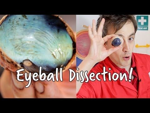▶ What's inside an eyeball?   Eyeball Dissection   At-Bristol Science Centre - YouTube