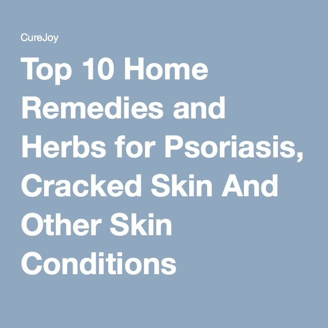 Top 10 Home Remedies and Herbs for Psoriasis, Cracked Skin And Other Skin Conditions