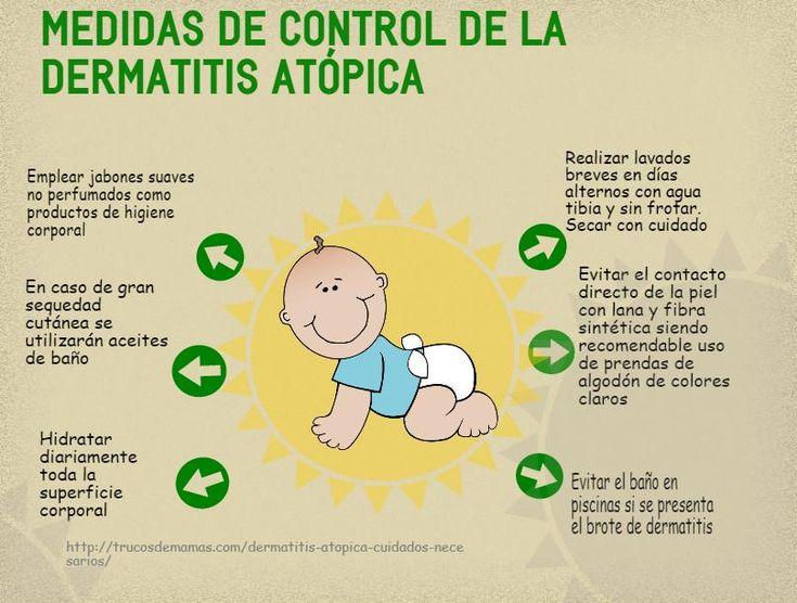 6 Medidas anti Dermatitis Atópica ¿Te apuntas?