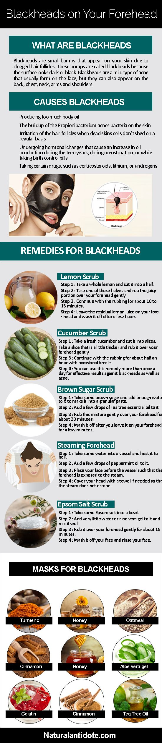 10 Amazing Home Remedies That Act Against Blackheads On The Forehead