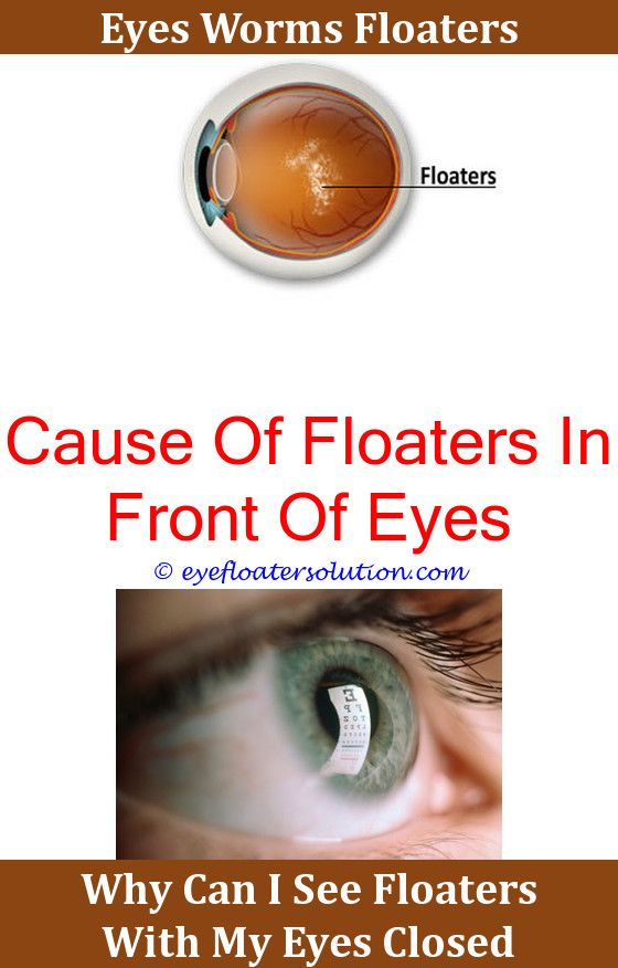 Sudden Onset Floaters And Flashing Lights