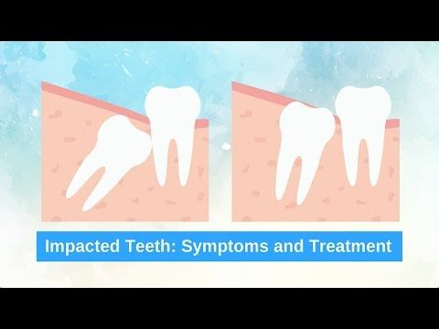 How To Know If You Have Impacted Teeth www.bondidental.com.au