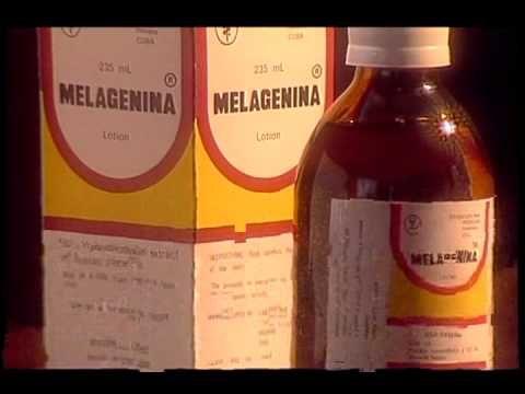CURA para el Vitiligo, medicina alternativa 100% natural - http://soylachica.com/cura-para-el-vitiligo-medicina-alternativa-100-natural/