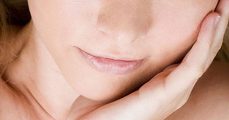 Como se livrar de marcas de acne no rosto. Depois de uma ocorrência de acne, podem ficar marcas marrons, vermelhas ou roxas no rosto. Tecnicamente chamadas de hiperpigmentação pós-inflamatória, essas manchas costumam ser confundidas com cicatrizes de acne. Apesar de sumirem com o tempo, elas podem durar alguns meses ou até anos. Felizmente, existem diversos tratamentos disponíveis para ...
