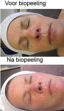 Review Neoderma biopeeling - Beauty Nieuws.nl
