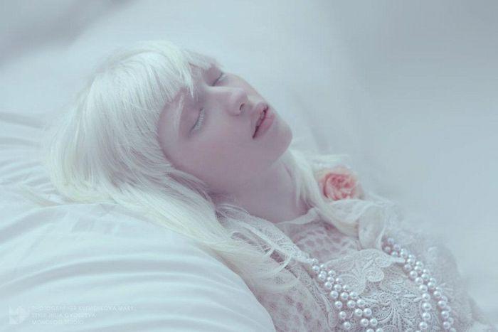 2万分の1の奇跡が生み出したロシアの《白いモデル》ナスチャ・クマロヴァが美しすぎる♡   GIRLY
