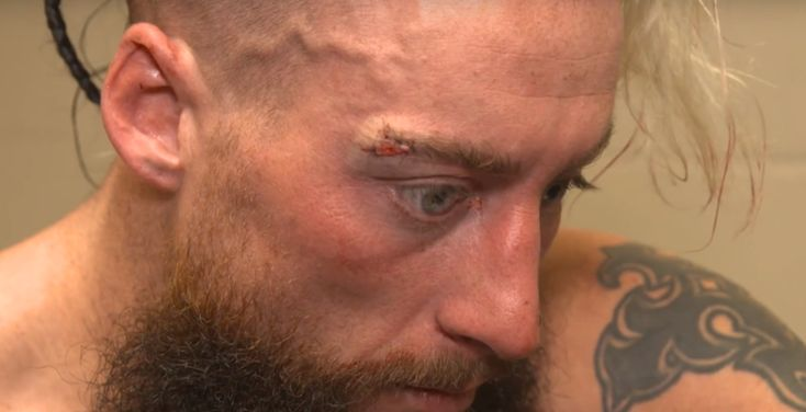 WWE says Enzo Amore is injured