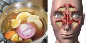 As infecções de ouvido, ou otites, geralmente são causadas por bactérias ou vírus que entram no organismo, devido a infecções respiratórias ou alergias.Saiba quais os sintomas mais comuns de uma infecção no ouvido:- Dores no ouvido