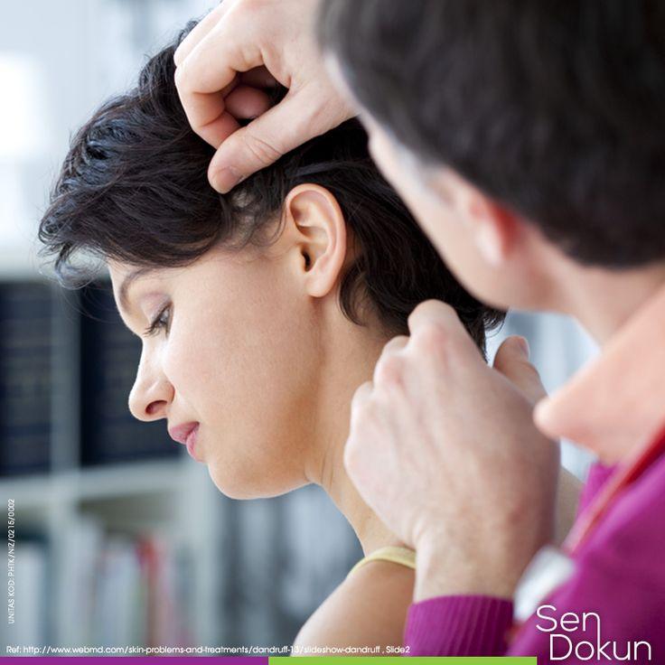 Kepek saçınızın kirli olduğu anlamına gelmez, fakat saçınızı yapma şekliniz ve kullandığınız ürünler derinizin pullanmasına sebep olabilir. Kepeklenme sorununuzu doktorunuza danışınız. ► http://pub.portalgrup.com/files/ailehekiminiziogrenin/index.html