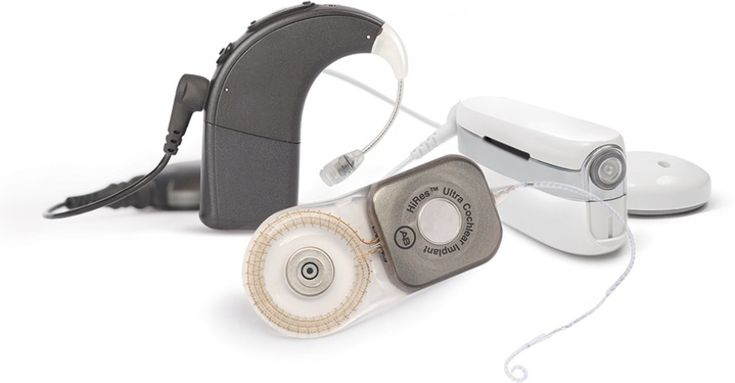 What is a Cochlear Implant System   Advanced Bionics - hearing implants - cochlear implant device - implanted hearing aid
