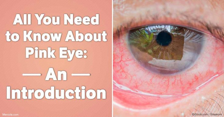 Learn the important facts about pink eye, what it looks like, how it spreads, causes, prevention and treatment. http://articles.mercola.com/pink-eye.aspx