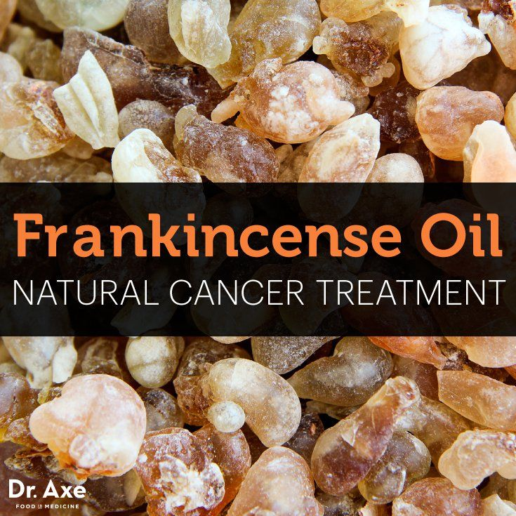 Frankincense Oil: A Natural Treatment for Cancer - you can take frankincense (Boswellia) as a supplement with a few essential oil drops placed under your tongue, on the roof of your mouth or in powdered capsule form for treatment of many health conditions.