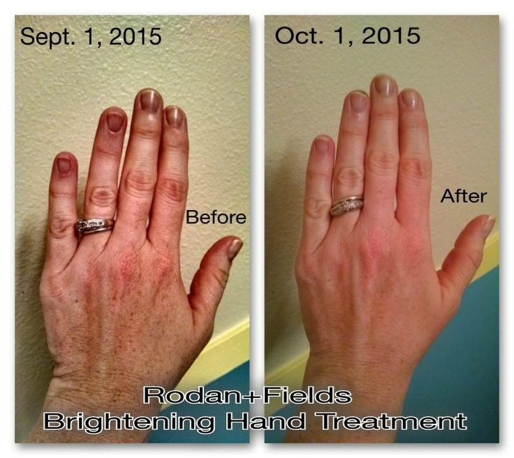 Natural Hand Moisturizer For Dry Skin