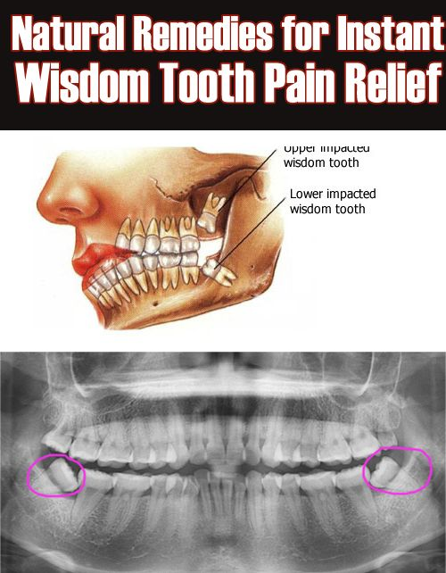 Simple Remedies for Instant Wisdom Tooth Pain Relief ...