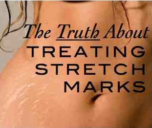 how to lose strech marks on arm