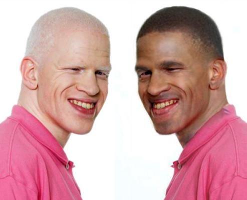 Black albino midget