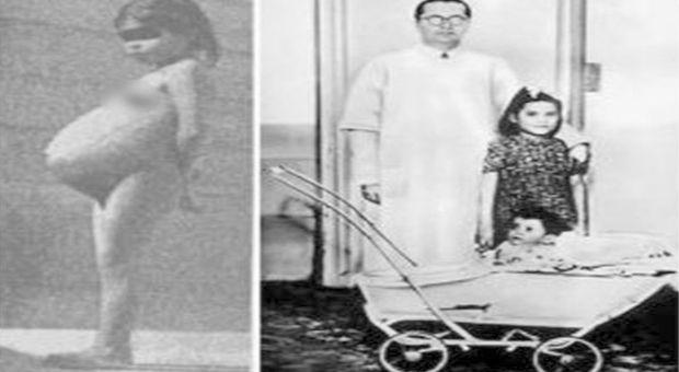Las historia real de Lina Medina: la niña que fue madre a los 5 años.