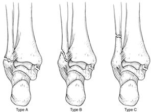 Ankle Fractures   http://www.osmsgb.com/Education.aspx  #ankleinjuries #anklefracture #brokenankle