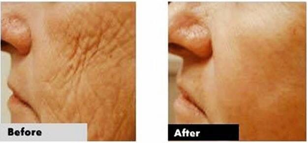 Anti ageing results using Luminesce www.agedelay.jeunesseglobal.com