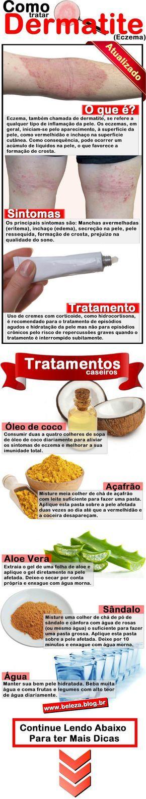 Eczema 27 Incriveis Remédios Caseiros Dermatite Atópica