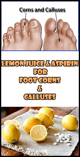This remedy is amazing when it comes to corn and calluses on feet . The aspirin cleans the skin , and the lemon softens and helps removing skin dead cells using a pumice stone. Follow this 5 simple steps : 000