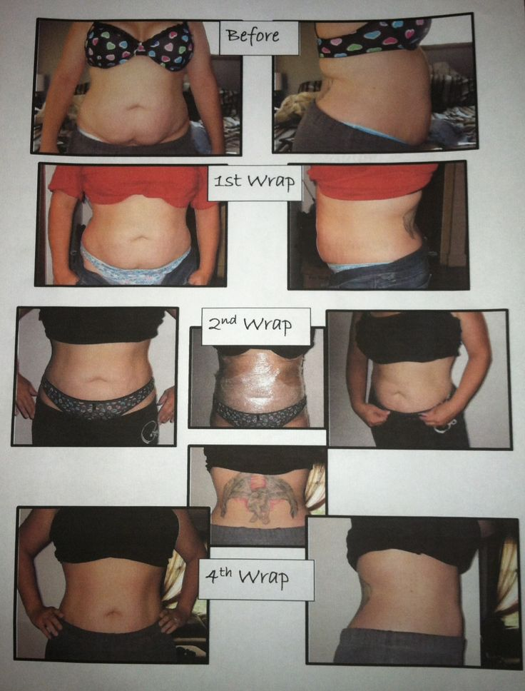 My own personal Before and After Pics.  This is why I love these products.  www.crazywonderwraps.com Contact me for more info.  412-770-6513