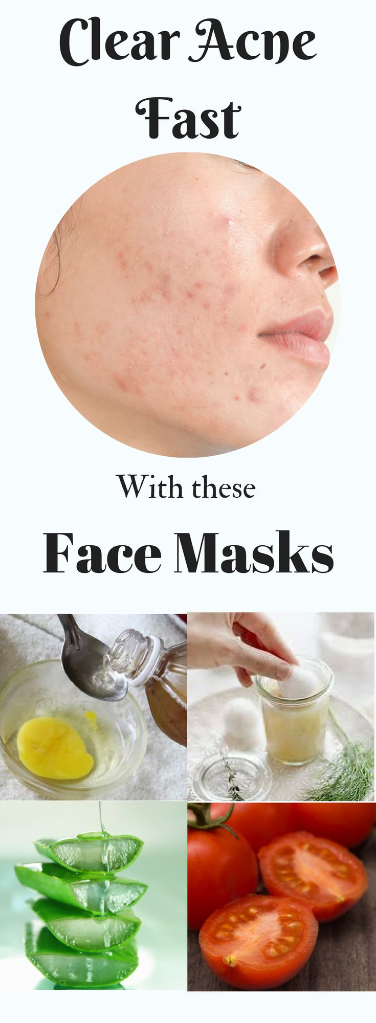 how to get clean face without pimples