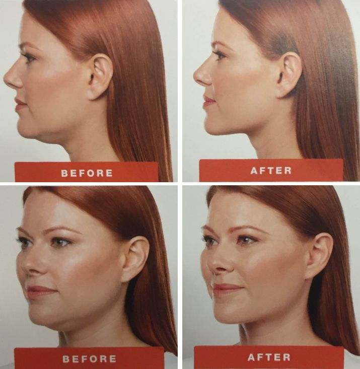how to get rid of unwanted hair under chin