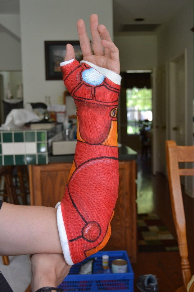 This guy, who got some help from Iron Man in the healing process. | 18 People Who Turned Their Casts Into Art