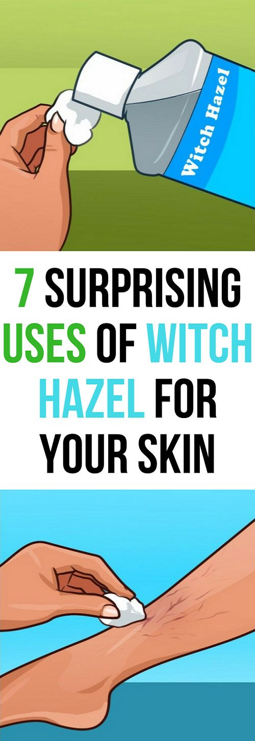 Use Witch Hazel For Your Skin With These 7 Ways