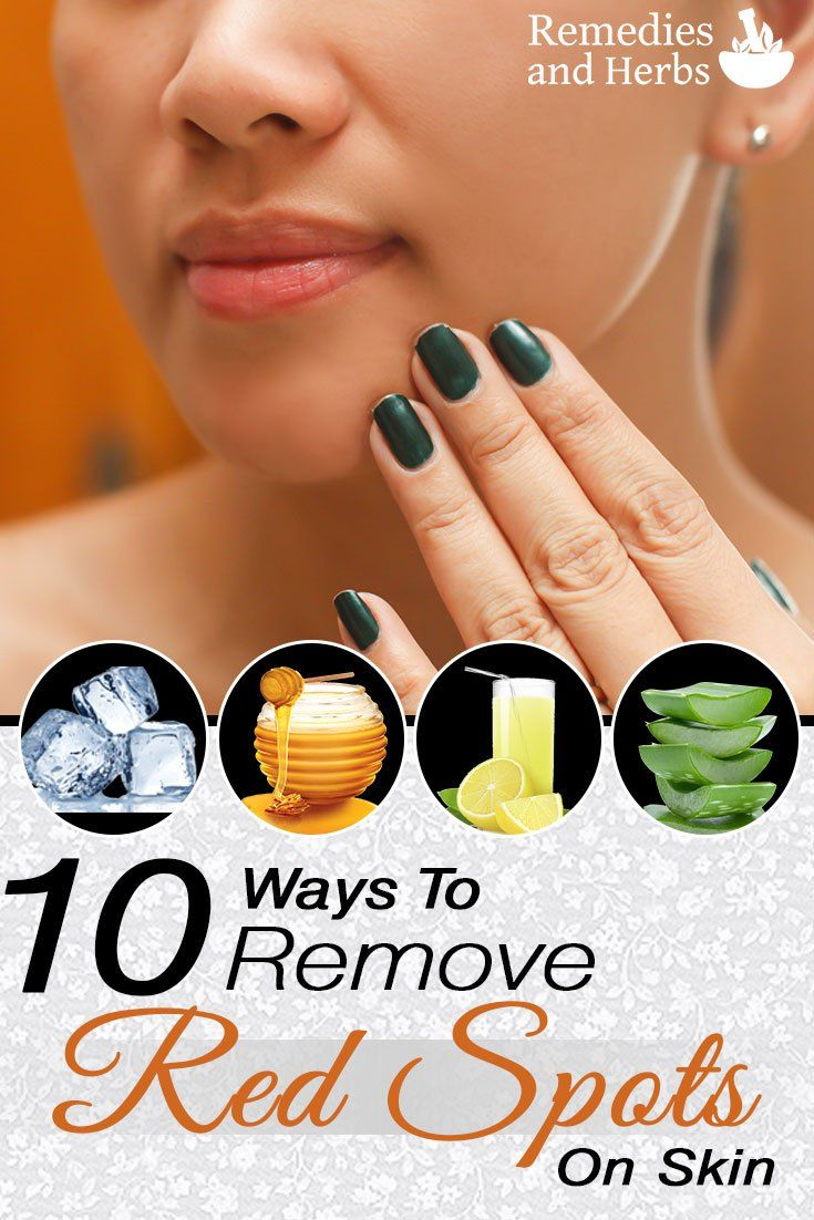 10 Ways To Remove Red Spots On Skin