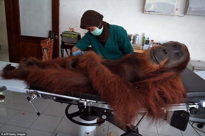 Adult male orangutan, looking rather Bigfoot-esque here, being given medical treatment at a clinic in Indonesia.  Clearly enjoying that anaesthetic drugs.