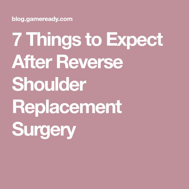 7 Things to Expect After Reverse Shoulder Replacement Surgery