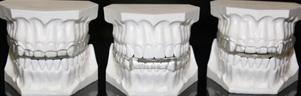 Bruxismo - Apretar o rechinar las estructuras dentales sin propósitos funcionales